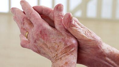 Sistemik Lupus ve Artrit Arasındaki Bağlantı Nedir